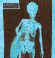 bolsos-el-dolor-espalda-L-W8vyYA