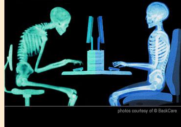 back_pain_solution_forward_head_posture